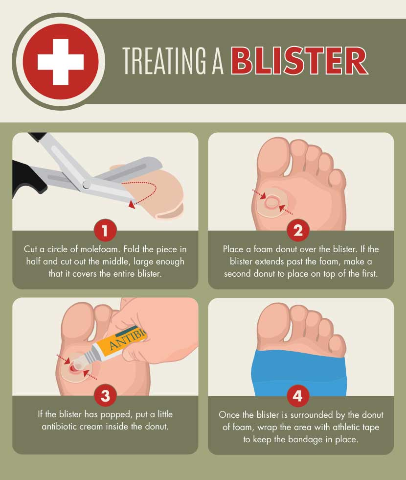 treating-blisters